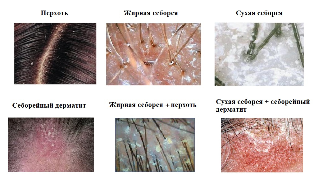 Маски от выпадения волос роста