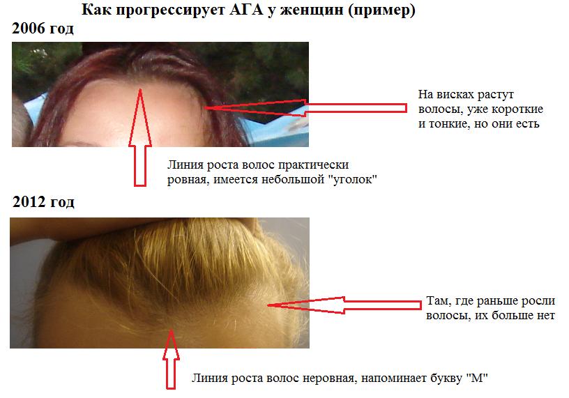 ускорить рост волос на лице в домашних условиях домов