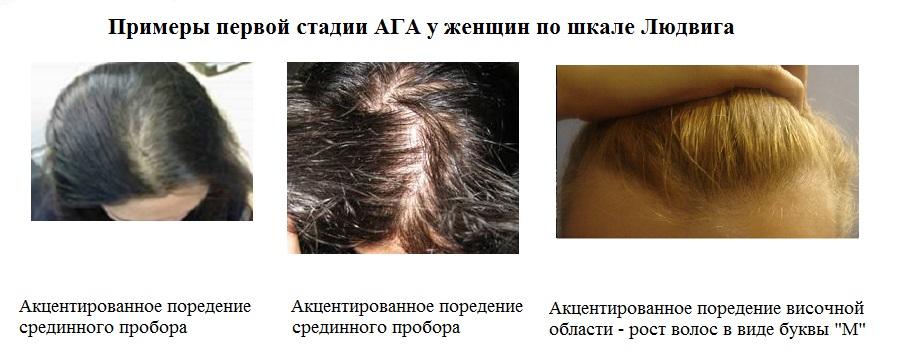что делать при выпадении волос у женщин