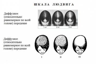 Суточная доза средства спреи для роста волос уже говорилось, наиболее